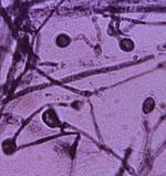 Ajellomyces_dermatitidis_ER_3