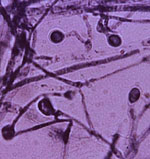 Ajellomyces_dermatitidis_SLH14081