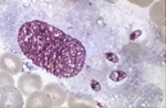 Leishmania_major_strain_SD_75_1