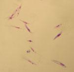Leishmania_tropica_L590